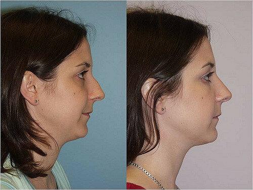 Ринопластика до и после. Фото 5