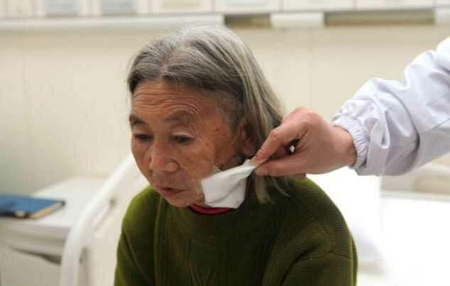 Китаянка 8 месяцев прожила с палкой в голове, не замечая её