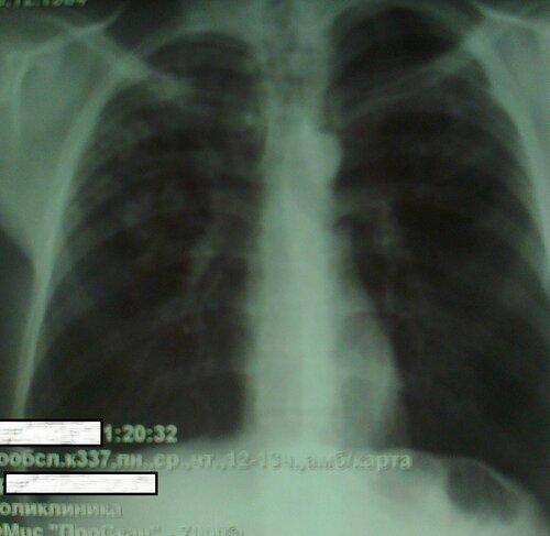 Двусторонный туберкулез легких