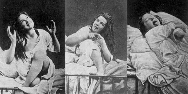 4. Конверсионное расстройство или истерия Это заболевание, больше известное как истерия, известно ещ