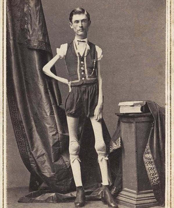 Исаак В. Спрэг (21 мая 1841 г. — 5 января 1887 г.) был артистом, выступающим в качеств