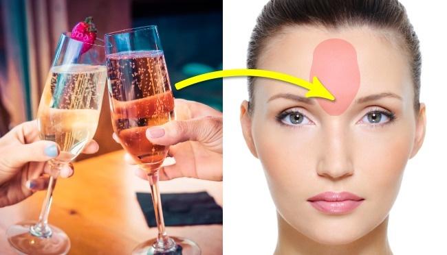 Нос  Прыщики на носу подают сигнал о том, что есть нарушения в работе сердечно-сосуд