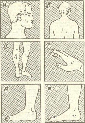 Кандидоз на предстательную железу