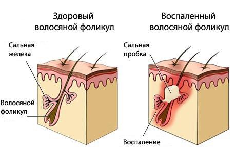 жирная себорея приводит к выпадению волос и облысению