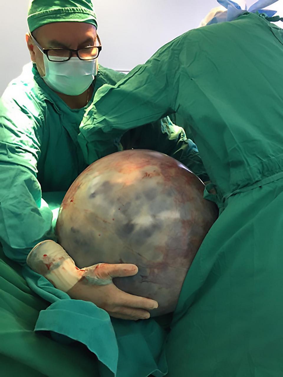Из пожилой женщины вырезали опухоль весом 32 кг, которую она вынашивала восемь лет