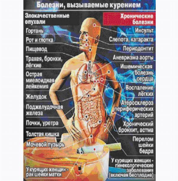 Открытки. Международный день отказа от курения. Курение ведет к болезням