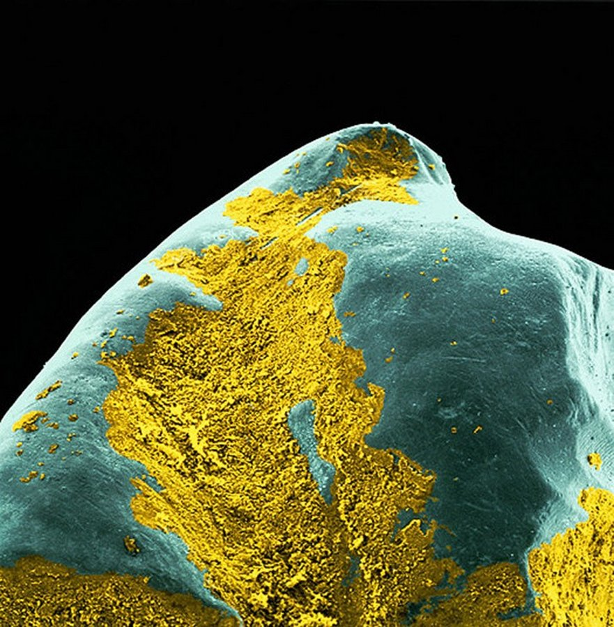 Бактериальный налёт на зубе.