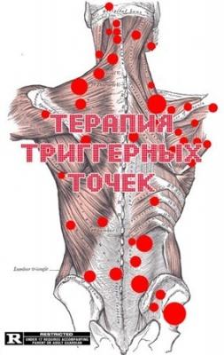 Книга Терапия триггерных точек (Видеоурок)