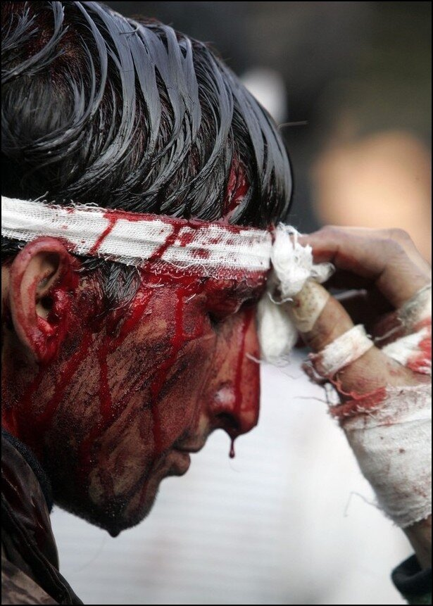 A paramedic cleans blood from the face of a Kashmiri Shi'ite Muslim during a Muharram procession in Srinagar
