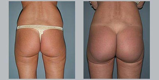Как ягодичные импланты меняют форму задницы
