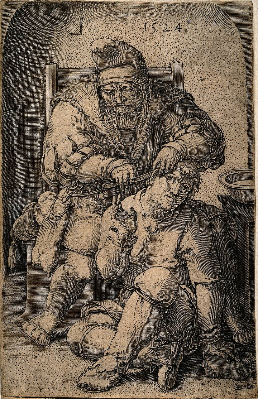 V0016242 An itinerant surgeon extracting stones from a man's head; sy