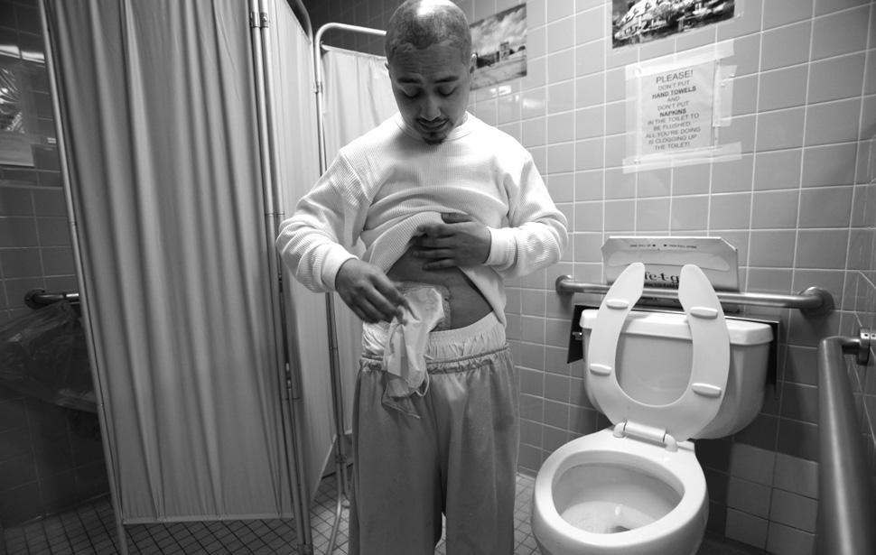 14. Фредди Гарсиа, страдающий от рака ободочной кишки, собирается заменить калоприемник. (Brian van
