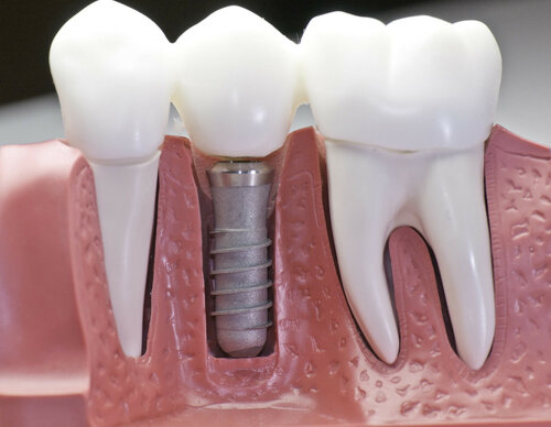 Что такое имплантация зубов под ключ