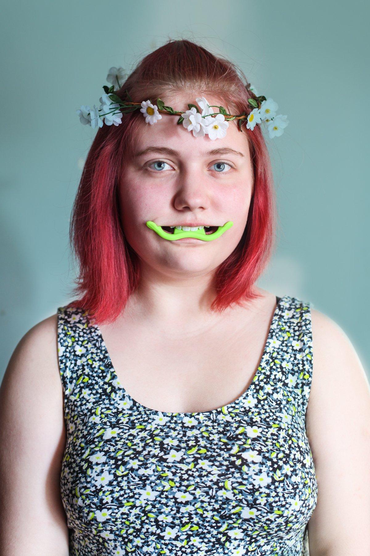Приспособление под названием Happy Face Trainer вставляется в рот и интенсивно прикусывается в течен