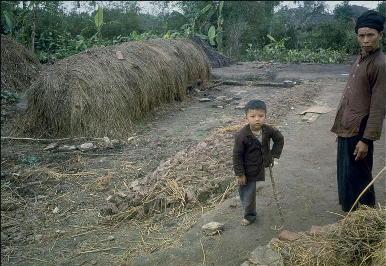 Одноногий мальчик, жертва бомбардировки