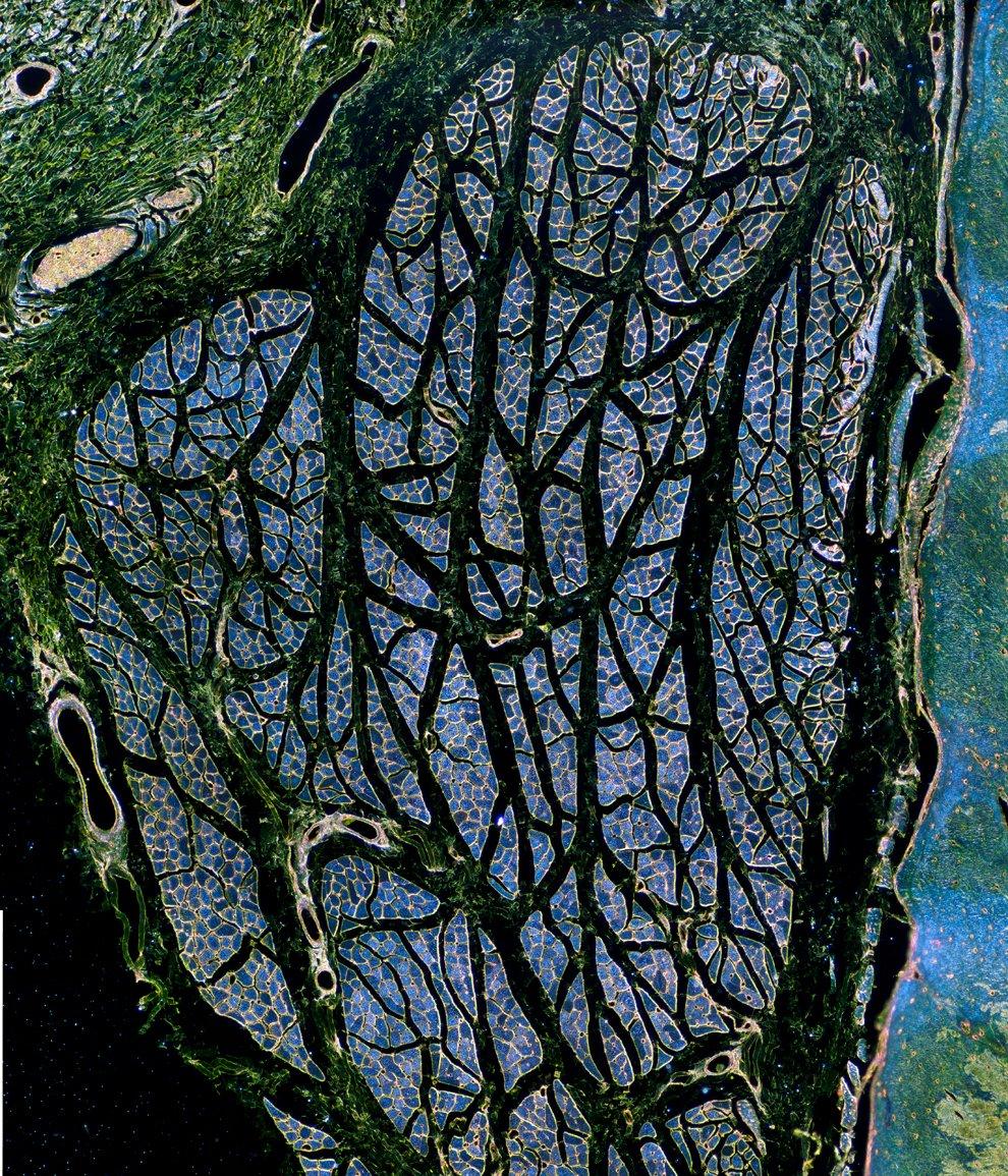 Поощрительная премия. Семена растения из московского пруда, 10-кратное увеличение. (Фото Dani