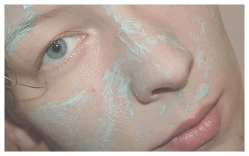 Как и чем чистить кожу лица