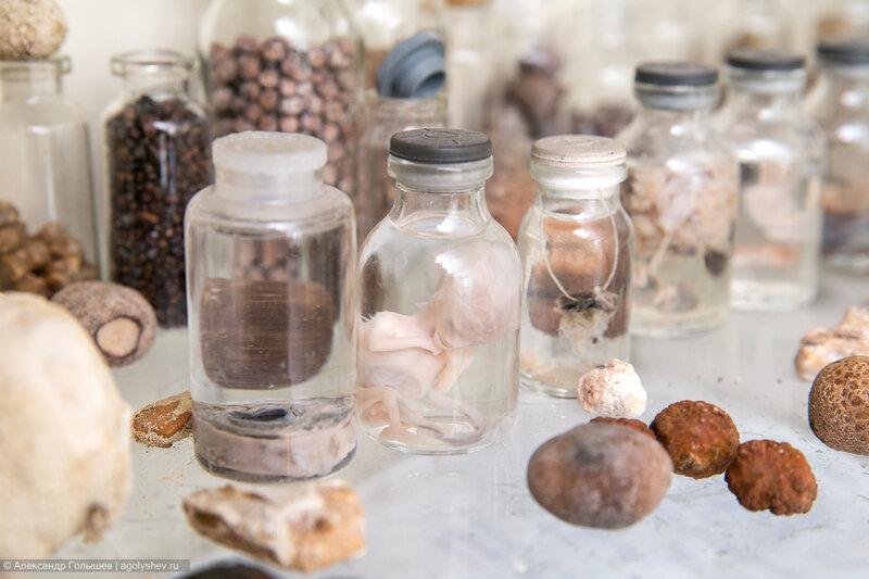 Камни из организма человека