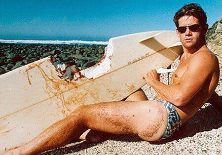 5. Эл Бреннека Пережил нападение акулы, произошедшее 25 ноября 1976 года...