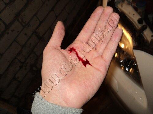 Я проткнул свою руку шилом и теперь вся ладонь онемела