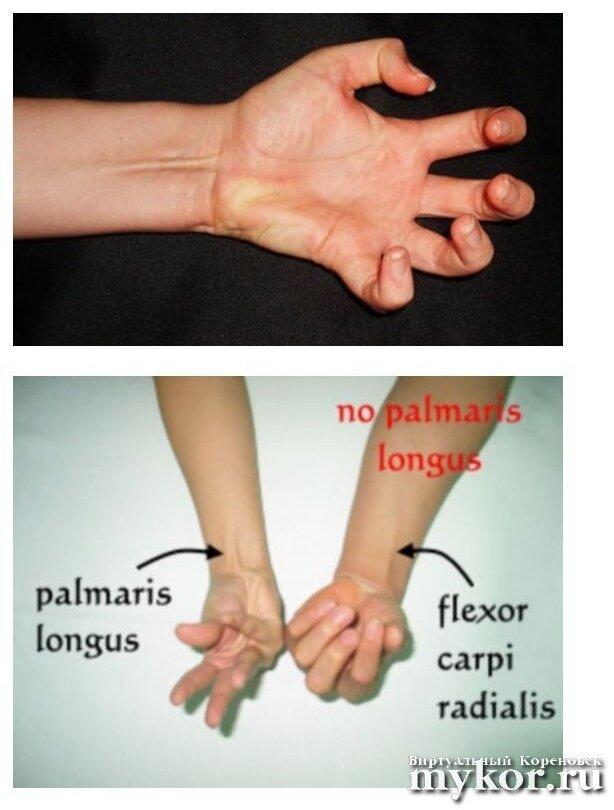 У 15 процентов людей отсутствуют длинные ладонные мышцы фото