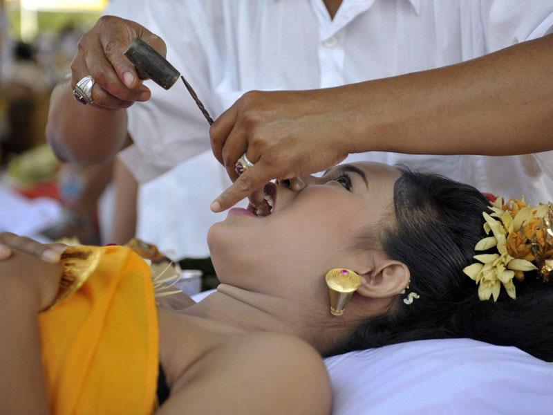 6. Спиливание зубов на Бали Все молодые люди на Бали должны пройти ритуал спиливания зубов, во время