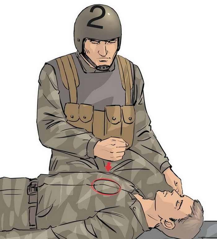Действия в случае, когда нет сознания и нет пульса на сонной артерии - 2