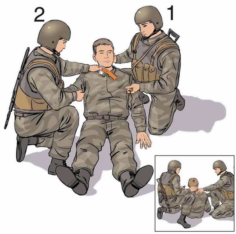 Наложение жгута на шею в положении раненого сидя