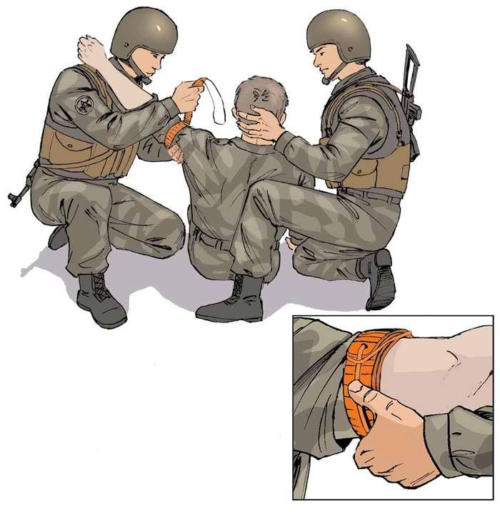 Правила наложения жгута на плечо при ранении в руку