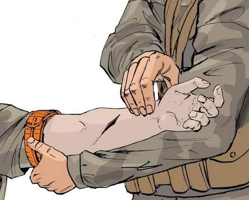 Ранение в руку - Убедиться в отсутствии пульса на лучевой артерии
