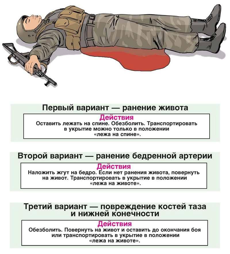 Действия в случае если возле ног и туловища раненого бойца видна лужа крови