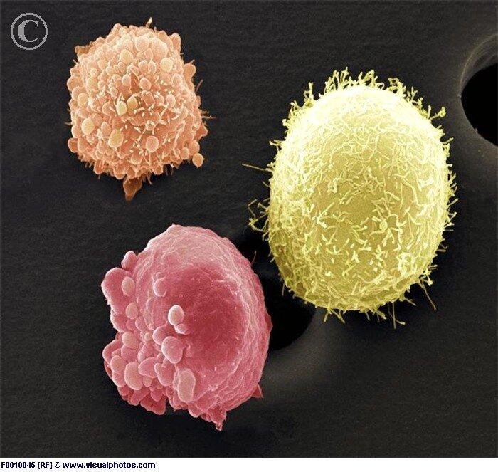 Фото качественной спермы под микроскопом 9 фотография