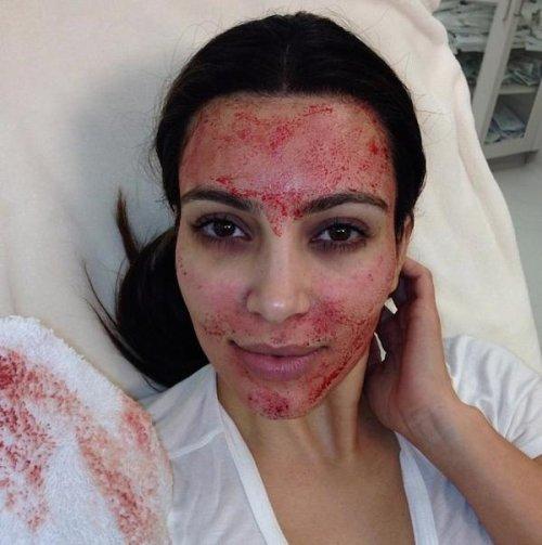 В 2013 году Ким Кардашян опубликовала в Твиттере снимок, сделанный после 1500-долларовой spa-процеду