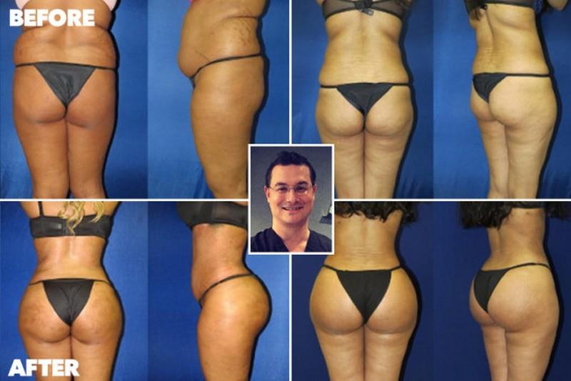 Пластический хирург делает бразильские попки из обвисших задниц