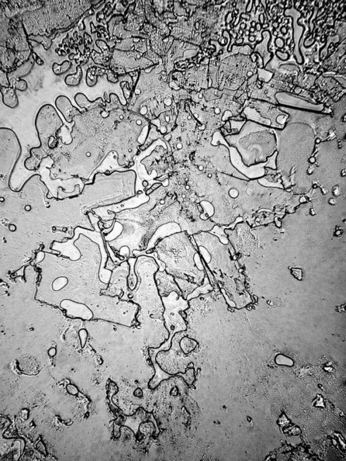 Структура человеческих слёз под электронным микроскопом