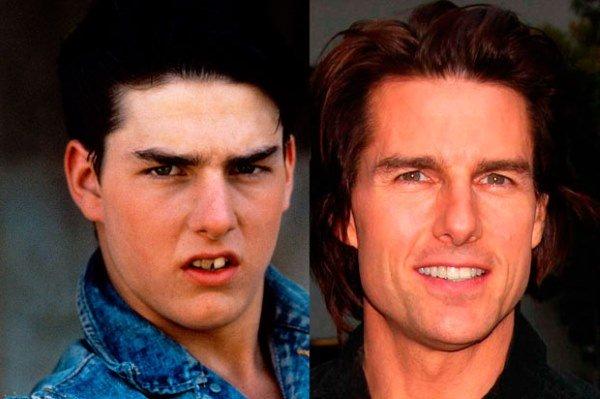 Том Круз до и после выравнивания зубов .