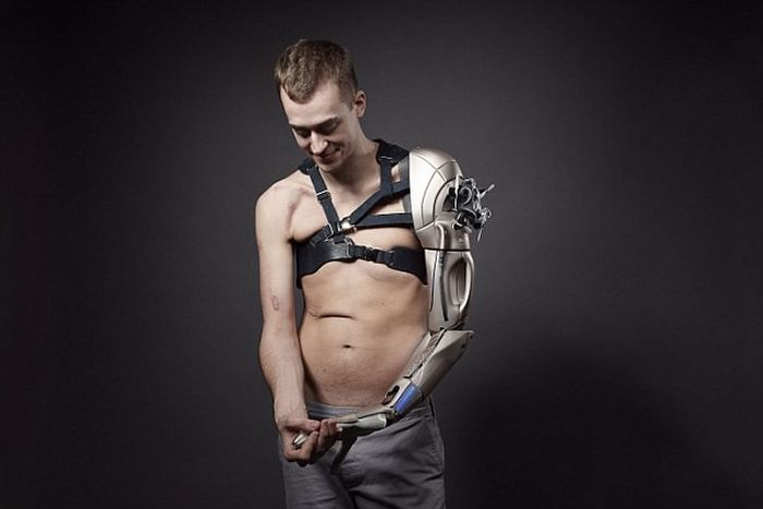 Британец получил бионическую руку