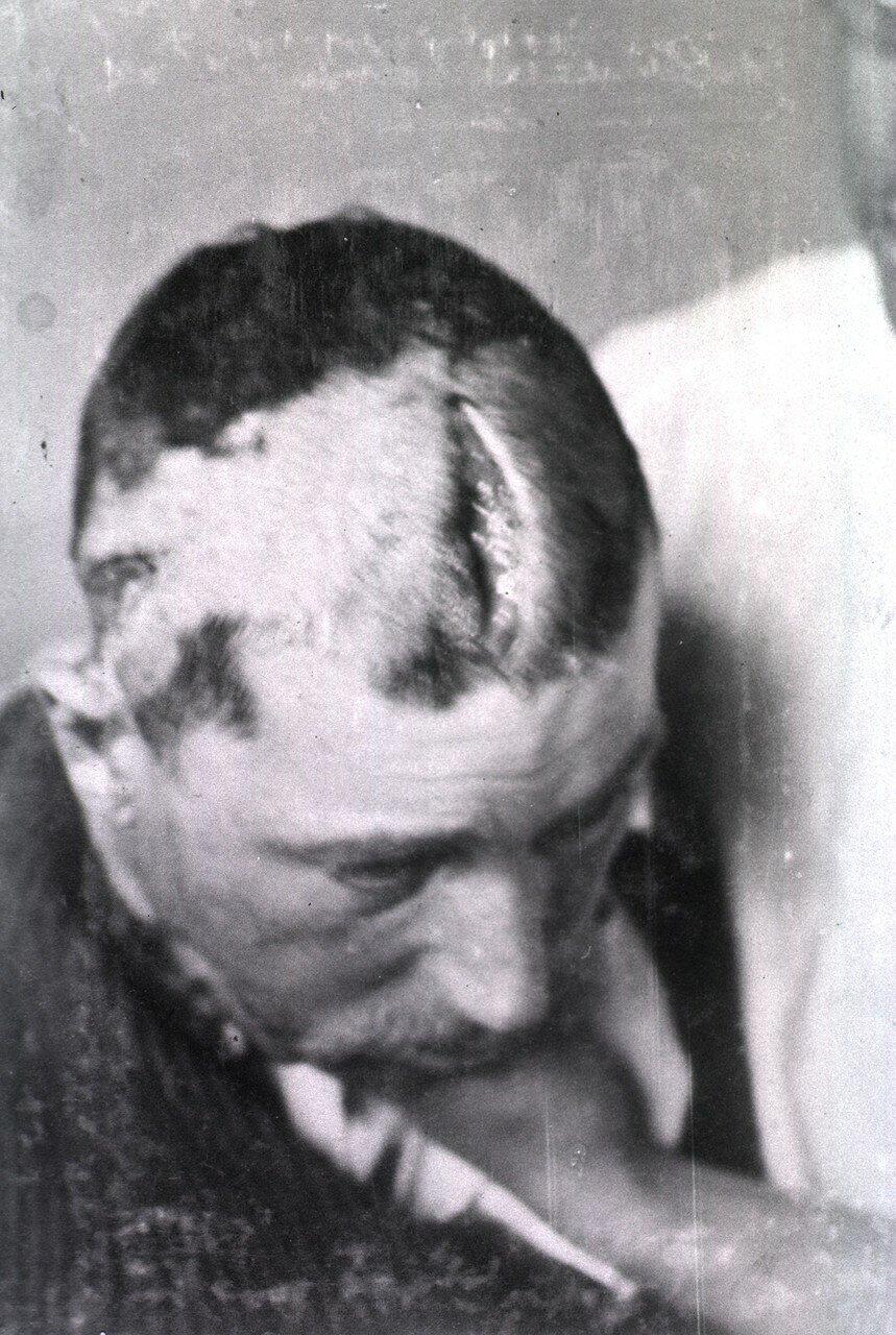 Вид открытой раны, проходящей по лбу и выше