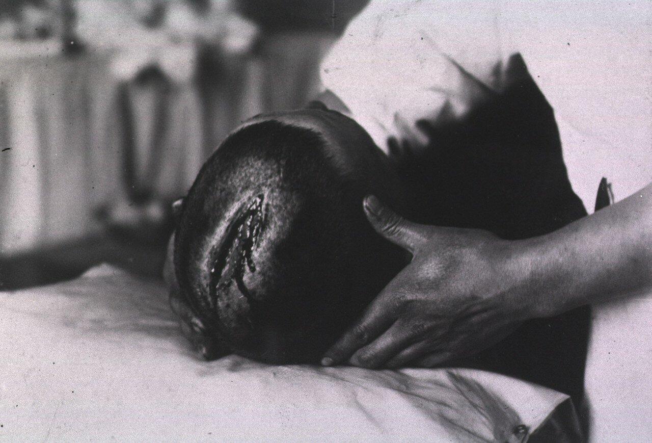 Вид открытой раны, расположенной в верхней части головы пациента