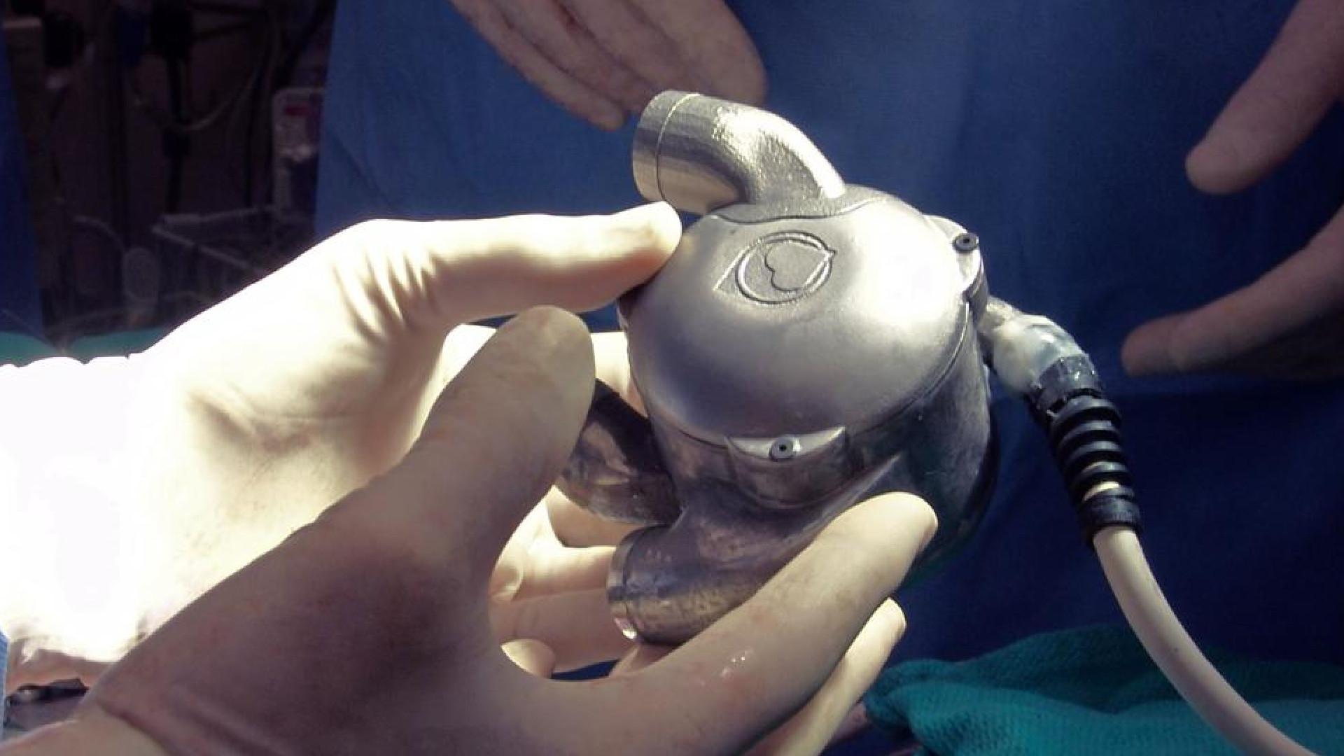 Бионическое сердце BiVACOR