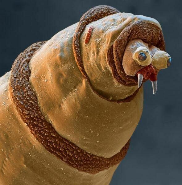 паразиты живущие человеке лечение