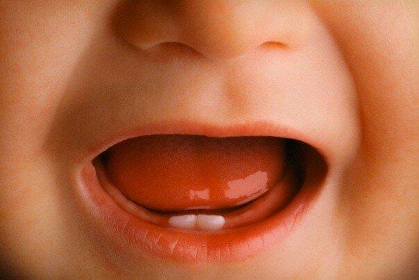 зубы у ребенка