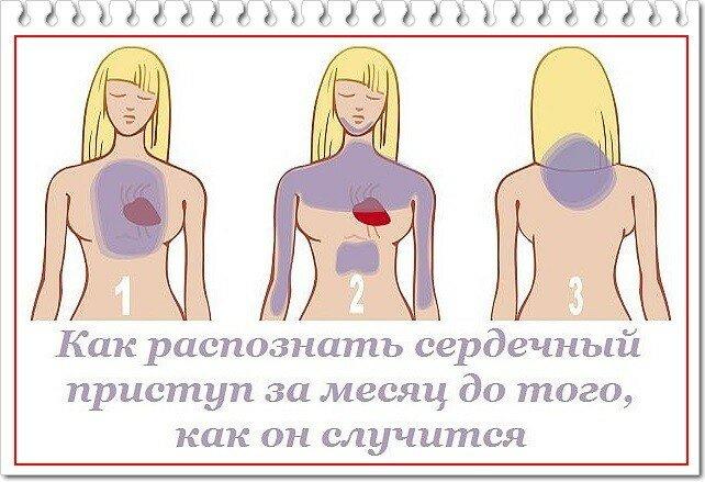 Как распознать сердечный приступ за месяц до того, как он может случится