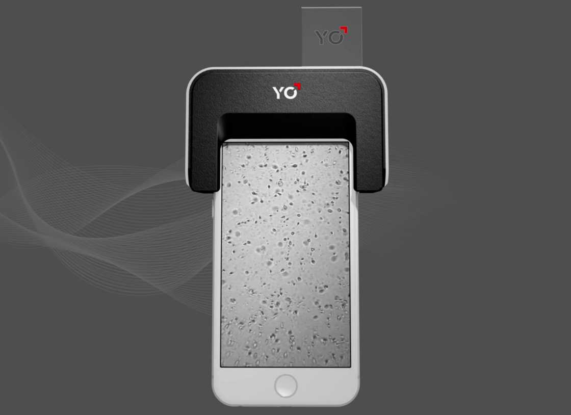 YO Sperm Test – Test your fertility with your smartphone (8 pics)