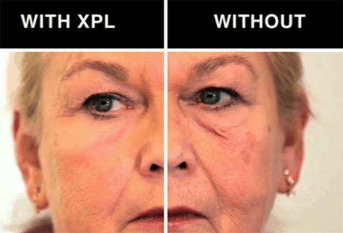 Учёные разработали «вторую кожу» - самое эффективное средство против морщин на сегодня Полки любого