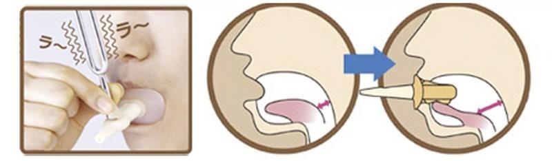 9. Устройства для формирования тонкого и прямого носа.