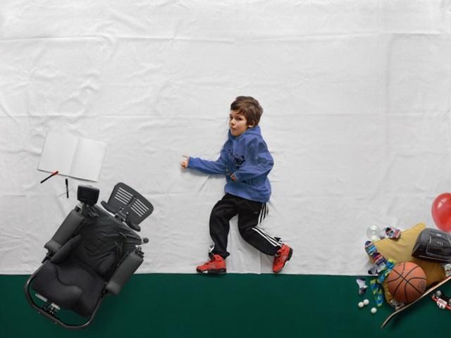 Матей Пелжхан: фотографии мальчика, который не может ходить 0 12cdd2 787a666d orig