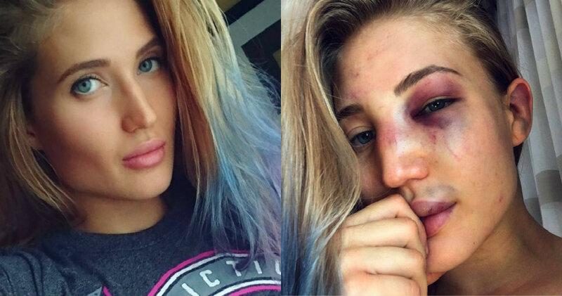 Красивая девушка   российский боец MMA рассказала о жестокой реальности боев