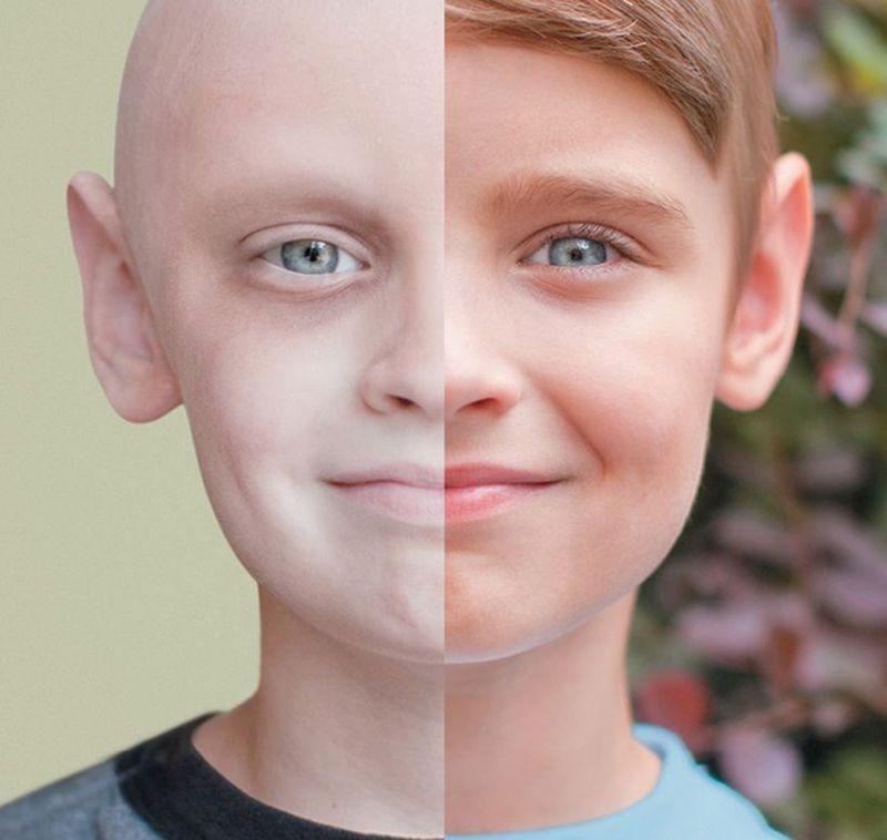 3. Мальчик, который победил рак.