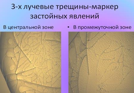 Трехлучевые трещины - маркер застойных явлений